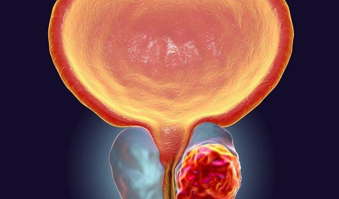 پیشگیری از سرطان پروستات