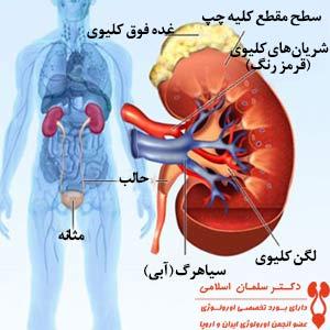 کلیه درد: علت و درمان - متخصص اورولوژی، کلیه و مجاری ادرار: دکتر اسلامی